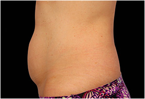 Welcome To Aesthetic Laser Care Laser Coolsculpting